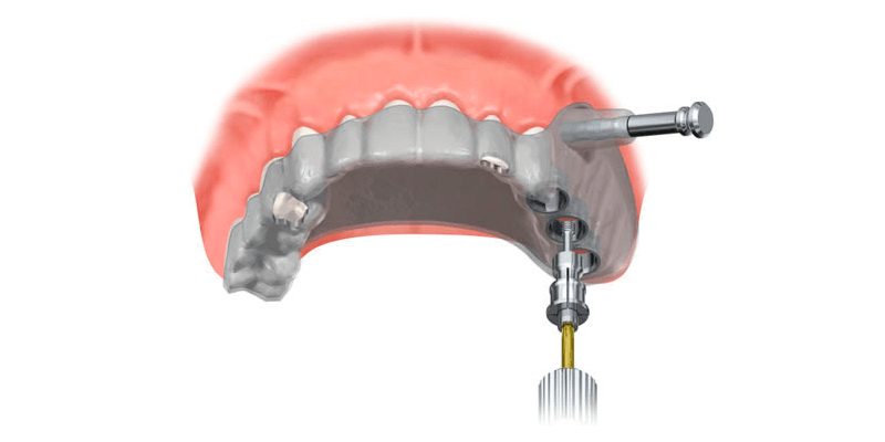 implante-dentario-guiado-por-computador