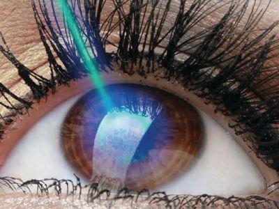 olhos-cirurgia..miopia