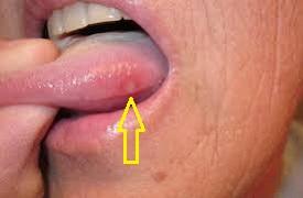 Волдыри на языке ближе к горлу фото
