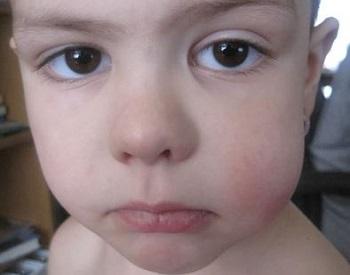 Опухла щека чем это вызвано методы лечения