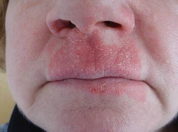 Сухая кожа вокруг рта и носа – причины, фото, домашние ...