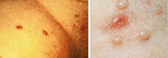 Cicatrice pe capul penisului - Profilaxie