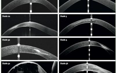 Apport de la Tomographie par Cohérence Optique dans le kératocône