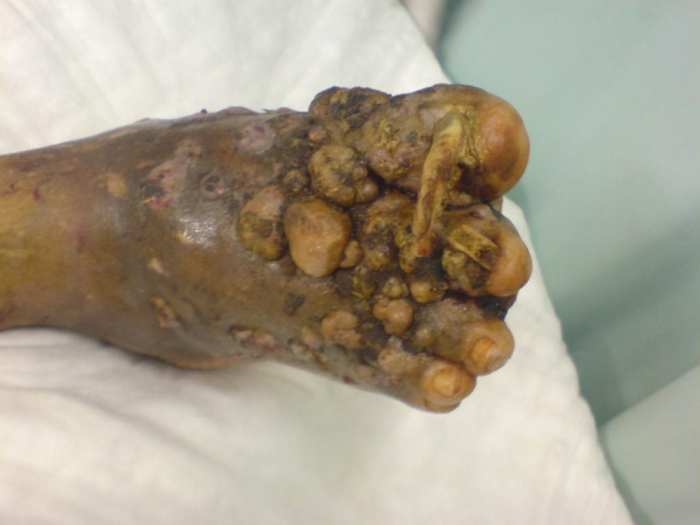 most scary diseases: Eumycetoma