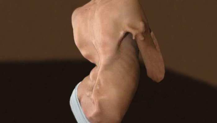 most scary diseases: Fibrodysplasia Ossificans Progressive
