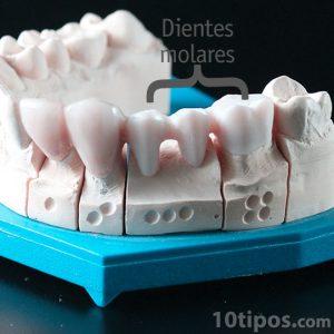 Alçı diş modeli