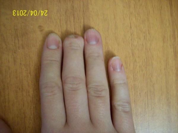Палец Без Ногтя Фото На Ноге