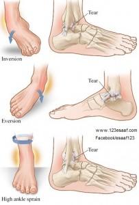 twisted leg diagram التواء مفصل الكاحل | 123esaaf.com #3