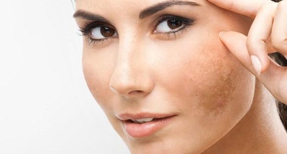 pigmentasi kulit muka