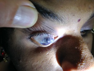 This photo shows a 13 year old blind child who has untreated congenital glaucoma with painful thinning and impending eye perforation.