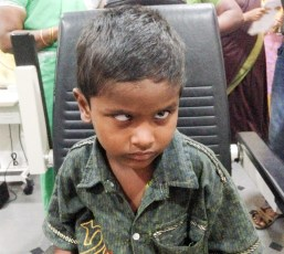 Child with untreated strabismus and nystagmus resulting in a severe head posture to try and improve his vision.