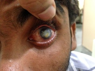 Severe corneal blindness in a child due to an untreated eye infection, one of the most common causes of childhood blindness in India.