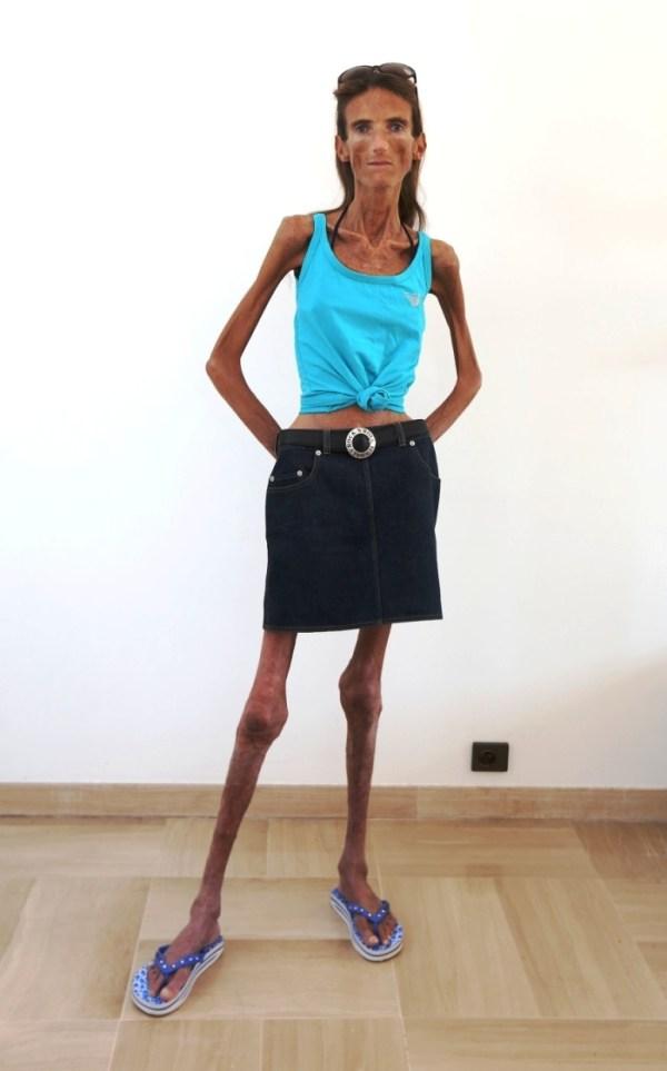 Самые худые люди в мире до и после Фото Мир Фактов