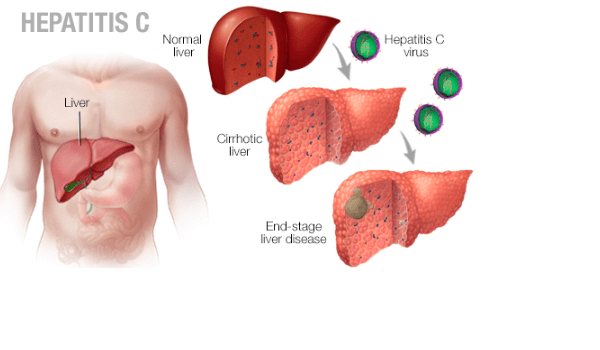 Everything you need to know about hepatitis C