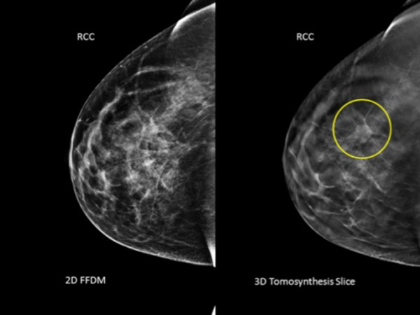 What's new in breast cancer treatment? - HT Health