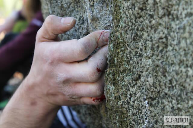 Odenwald_Verletzte Finger