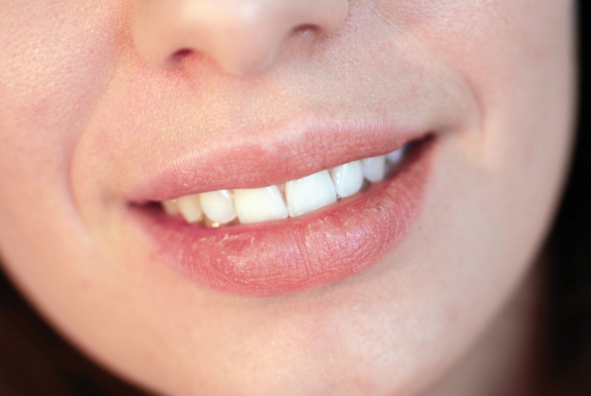 Dry Mouth Causes Side Effects And Symptoms
