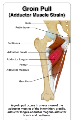 Groin and Adductor Strains In Ultimate Players: Why It