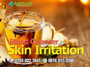 Blood Cleanser For Skin Irritations