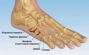 Реабилитация и восстановление после перелома пятой плюсневой кости со смещением и без