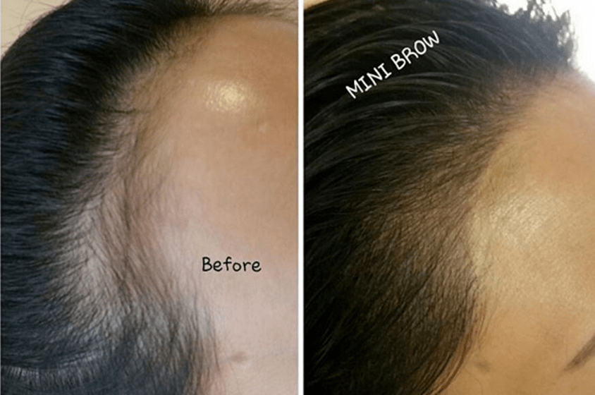 Microblading Hairline Wigs Forum