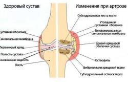 Магнитотерапия для суставов свойства особенности результаты