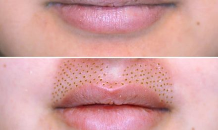 Skin Treatment to Get Rid of Stretch Marks and Give You Fuller-Looking Lips