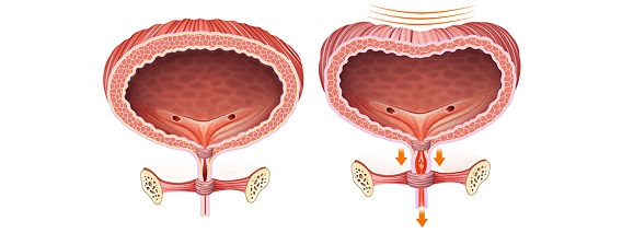 Possible remedies for bladder infections