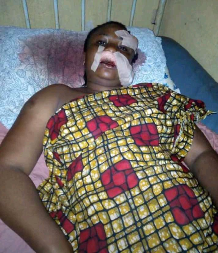 Nigerian lady disfigures her friend's face over N950