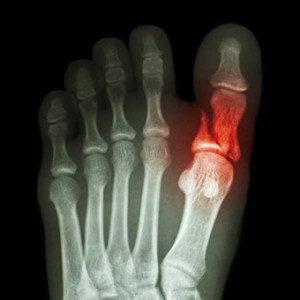 Перелом ногтевой фаланги большого пальца ноги: сколько заживает и нужен ли гипс. Симптомы и лечение перелома большого пальца на ноге