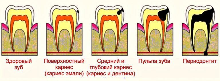 Воспаление зубов от переохлаждения