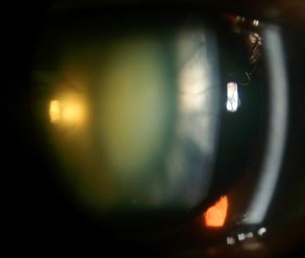 NS cataract eyewiki