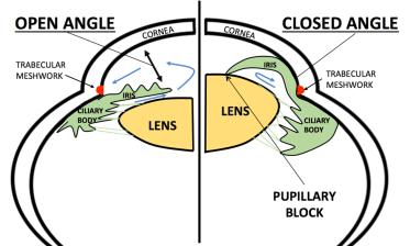 pupillary block schematic