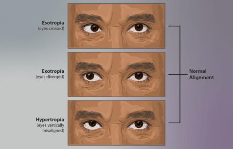 strabismus diagram