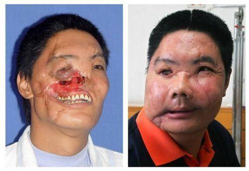 这组照片显示了一名男子在手术前和手术后的比较。这名西安男子姓李,在2004年遭受了熊袭,在一个国际支援组织和西安医院13小时手术的帮助后,成为了如右图所示的样子。