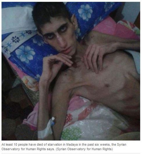 1-CBC-fake-photos-Madaya-Syria