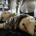 "Syria: No ""Dusty Boy"" Outrage for 7 yr old Haider, Sniped by NATO Terrorists in Idlib Village of Foua"