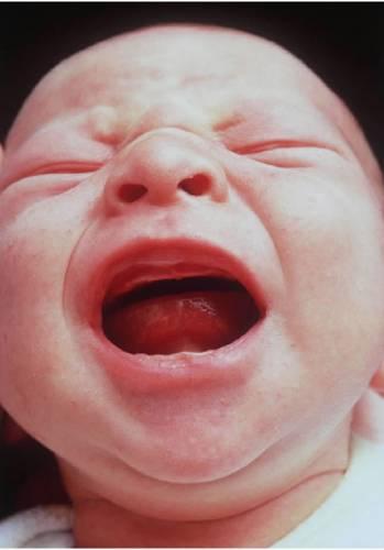 Sperma zmrazené 21 let zplodilo chlapceVe Velké Británii se narodil chlapec, při jehož početí bylo použito spermatu zmrazeného před jednadvaceti lety, čímž pravděpodobně vznikl nový světový rekord. Otec dítěte si nechal zmrazit sperma, když mu bylo 17 a zahájil úspěšnou léčbu rakoviny. Mužovo sperma bylo uloženo ve zkapalněném dusíku dvě desetiletí a bylo rozmrazeno ve chvíli, kdy se rozhodl oženit a založit rodinu. Dítě se narodilo dva roky poté, co se nepovedly čtyři pokusy o oplodnění ve zkumavce.