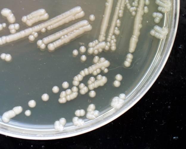Novou antibakteriální terapii, založenou na inhibici enzymy RNA-polymerázy, vyvíjí Irina Artsimowitch se spolupracovníky.