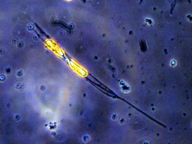 Zatím jediným, komu se daří poručit dešti se zdá být plankton, kterému výrazně škodí ultrafialová složka slunečního záření.