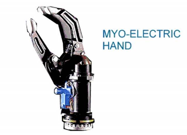 Problém všech umělých náhrad končetin je, že jim chybí zpětná vazba. Např. současná náhrada ruky je již docela složitým mechanismem, který dokáže uchopit i různé předměty. Do mozku však nejdou signály, jakou silou protéza předmět svírá.