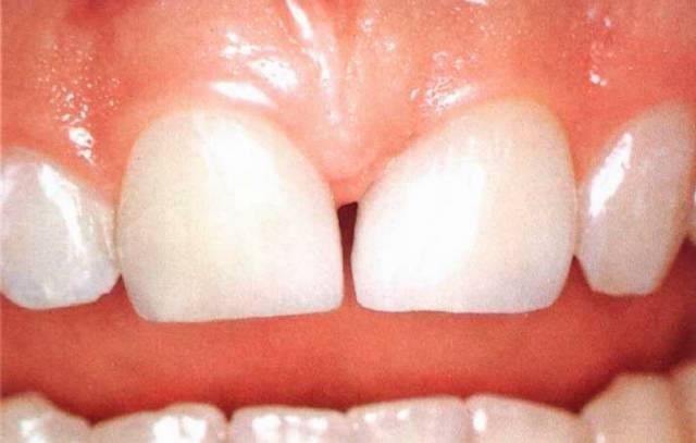 """Výčet tkání a orgánů, v kterých se podařilo najít kmenové buňky s poměrně širokým rejstříkem možných """"osudů"""", se rozrostl o dřeň mléčných zubů."""