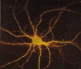 Celkově paralyzovaný Američan Matthew Nagle (25) má v mozku implantovaný čip, díky kterému může pohybovat nejrůznějšími předměty.