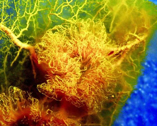 Hrozivější než cholesterol – takový přívlastek dali odborníci homocysteinu. Mnozí experti v něm vidí klíč k tajemné třinácté komnatě civilizačních chorob.