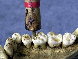 V Pákistánu se zuby vrtaly už před 9000 lety.