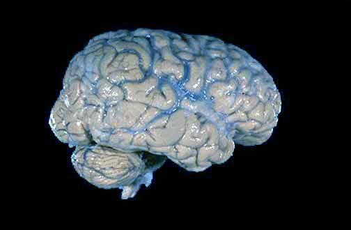 Nová studie na pokusných myších ukazuje, že mozkové buňky nesnášejí zahálku. Čím méně mezi sebou komunikují, tím rychleji umírají.