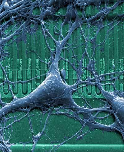 Miniaturní výkonné počítače voperované přímo do mozku jsou v dílech science-fiction celkem zcela běžnou rekvizitou. Vize fantastů se nyní začínají pomalu uskutečňovat. Zatím by ale měly mozkové čipy především pomáhat nemocným.