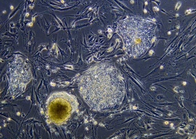 V loňském roce se doslova strhla smršť objevů týkajících kmenových buněk. Až doposud jsme se museli spokojit jen s lichou nadějí od korejských podvodníků, teď ovšem několik nezávislých týmů prokázalo, že terapie za pomoci všehoschopných buněk, připravených přímo z tkání pacienta, už netrpělivě buší na dveře.