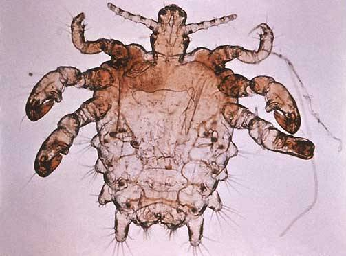 """Na lidském těle žijí za """"příznivých"""" podmínek dva druhy poměrně blízce příbuzných druhů parazitického hmyzu. Věš dětská (Pediculus humanus) a o něco kratší, zato však širší veš muňka (Pthirus pubis), lidově zvaná """"filcka"""". Vědci si dlouho lámali hlavu, jak je možné, že lidské tělo dokáže hostit dva tak odlišné druhy příbuzných parazitů. Příslovečné zvolání """"heuréka!"""" se nedávno ozvalo na britské University College London."""