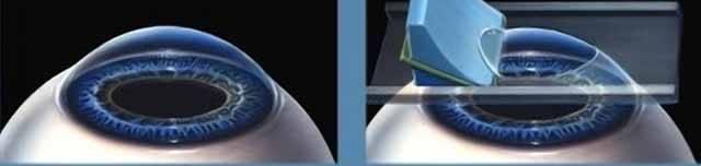Bohužel se čas od času stane, že součástky, ze kterých je sestaveno lidské tělo, se opotřebují či porouchají. Zrak, zřejmě nejdůležitější smysl, není v tomto ohledu výjimkou. Řešením pak mohou být brýle, kontaktní čočky nebo laserová operace očí.